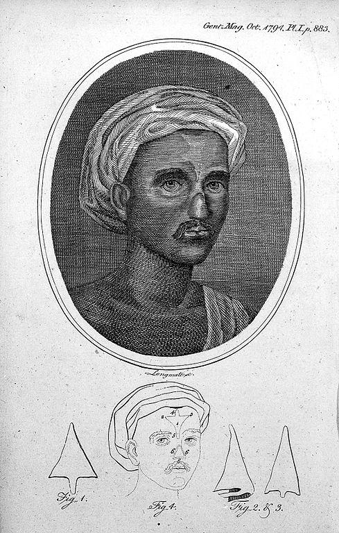 Древнеиндийская операция на носу. Иллюстрация из журнала Gentleman's Magazine 1794 года