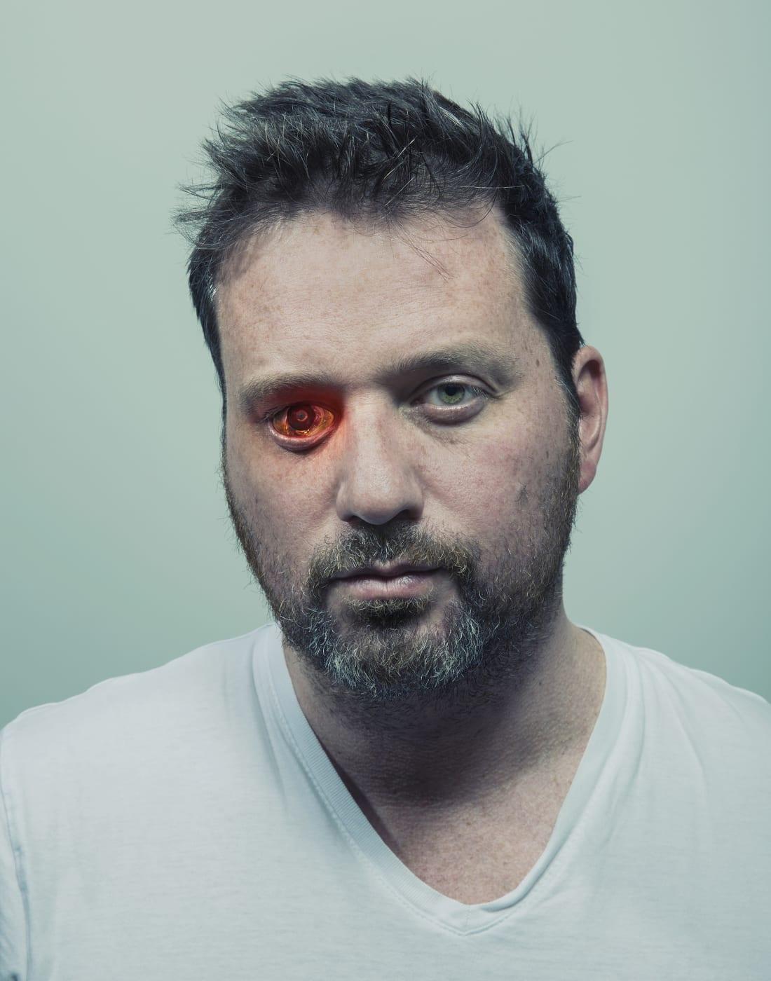 Роб Спенс установил беспроводную видеокамеру вместо правого глаза. Сам он называет себя глазборгом (eyeborg). Камера не связана с его оптическим нервом, но посылает отснятый материал компьютеру.