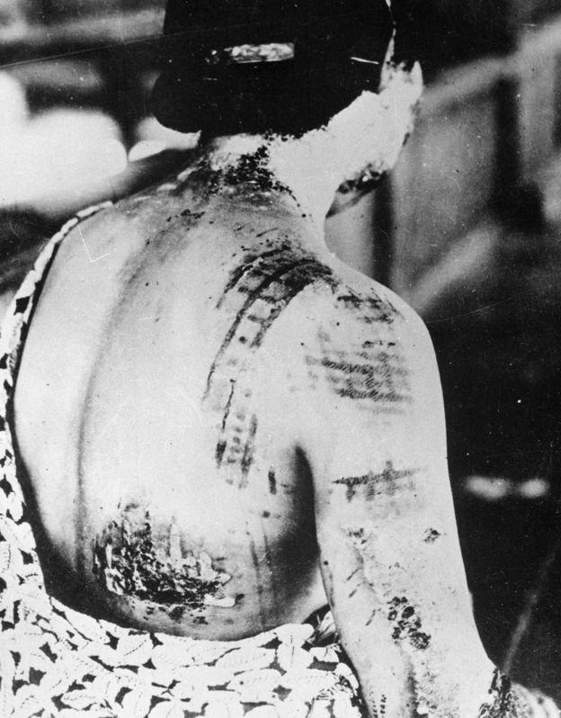Следы от кимоно, которое запеклось на коже одной из жертв бомбардировки.