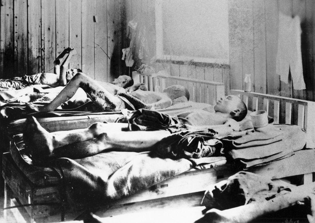 Японцы, которые пережили бомбардировку, но получили радиационные ожоги.