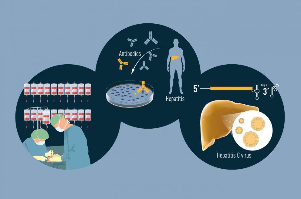 Нобелевскую премию по медицине вручили за открытие вируса гепатита С. Оно произошло в прошлом веке