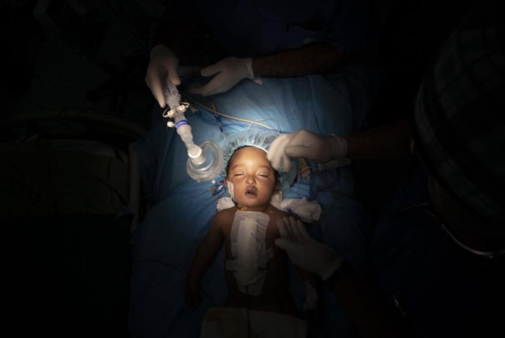 С годовалого Язана снимают кислородную маску после операции на сердце в Национальном кардиологическом центре в Триполи, Ливия. Мальчик пережил не только пятичасовую операцию, но и опасный путь из своего маленького городка в пустыне.