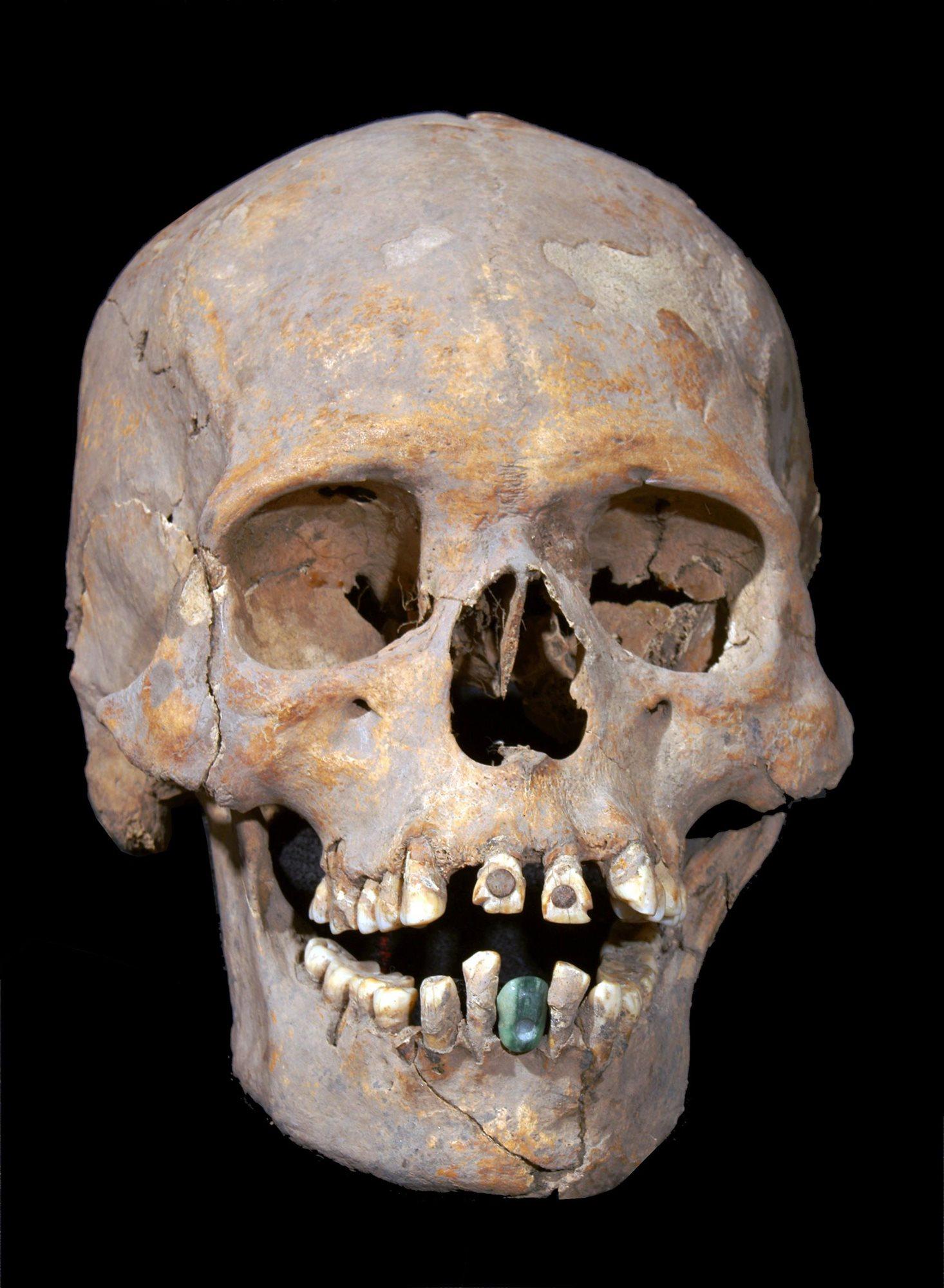 Череп женщины возрастом 35—40 лет. Он был найден при раскопках древнего города Теотиуакан неподалеку от Мехико. Возраст находки — 1 600 лет. Нижний искусственный зуб сделан из серпентина.