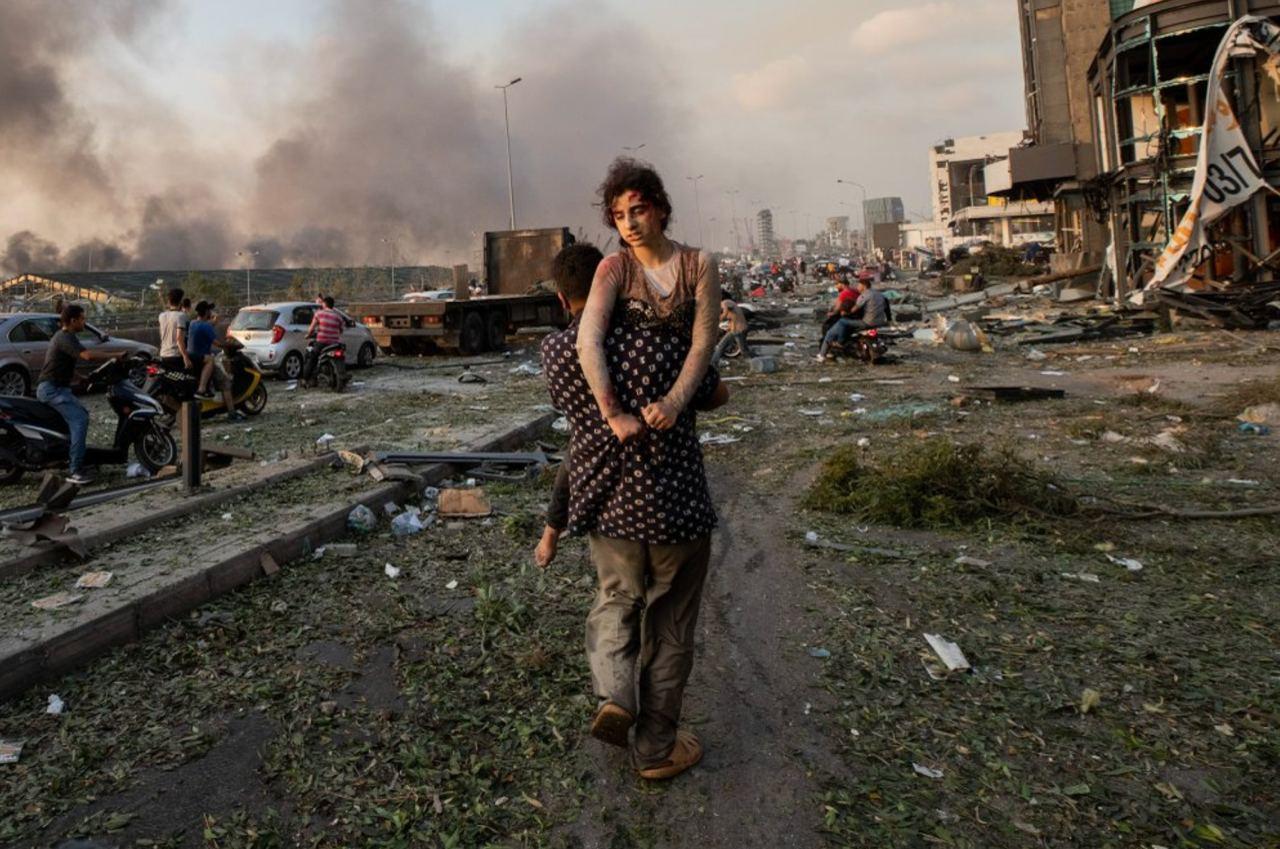 11-летняя Хода Кинно, которую несет ее дядя Мустафа после взрыва в порту Бейрута. Хода получила перелом шеи и другие травмы, а ее 15-летняя сестра Седра погибла.