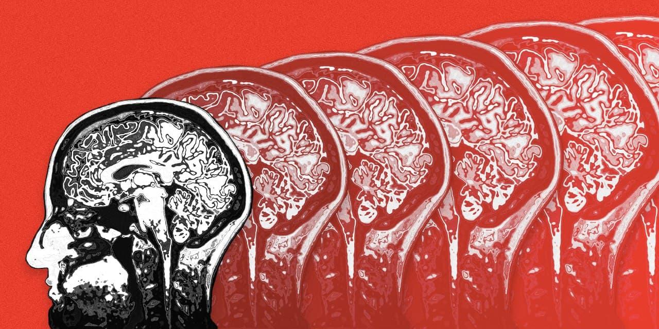 Бекон и сосиски могут повысить риск развития деменции. Исследование